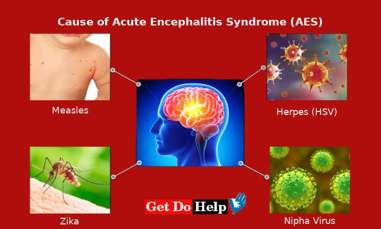 cause of Acute Encephalitis Syndrome (AES) or Chamki Fever